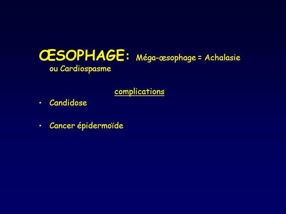 ŒSOPHAGE: Méga-œsophage = Achalasie ou Cardiospasme