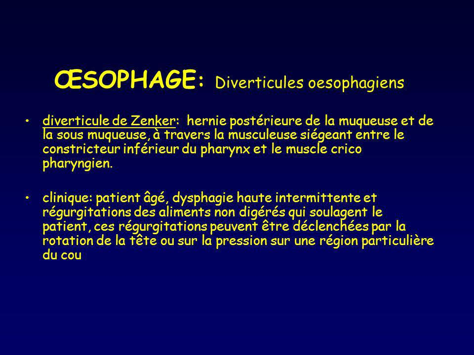 ŒSOPHAGE: Diverticules oesophagiens