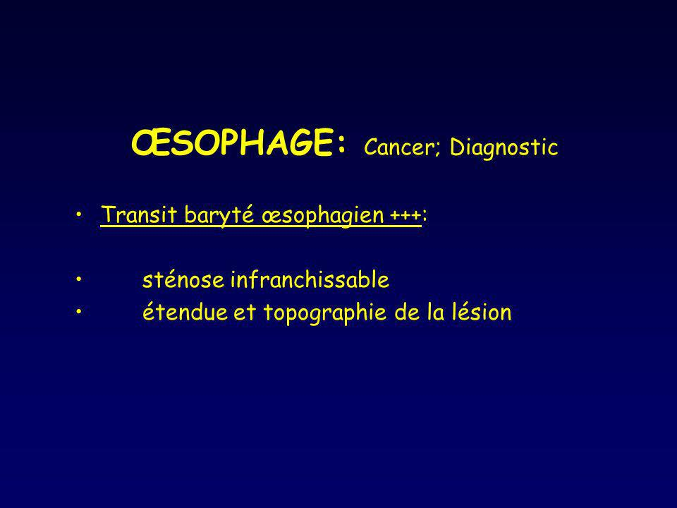 ŒSOPHAGE: Cancer; Diagnostic