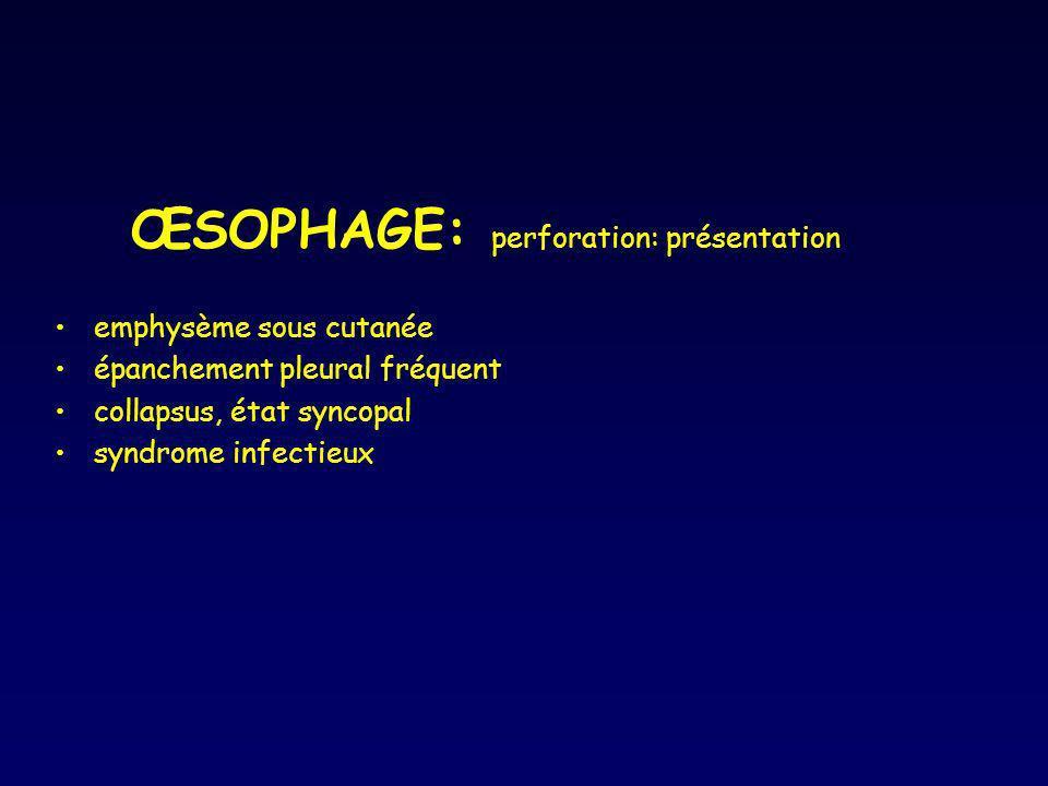 ŒSOPHAGE: perforation: présentation