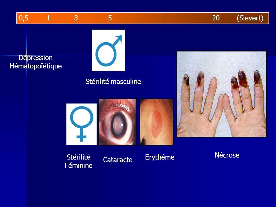 0,5 1 3 5 20 (Sievert) Dépression. Hématopoïétique. Stérilité masculine. Nécrose. Stérilité.