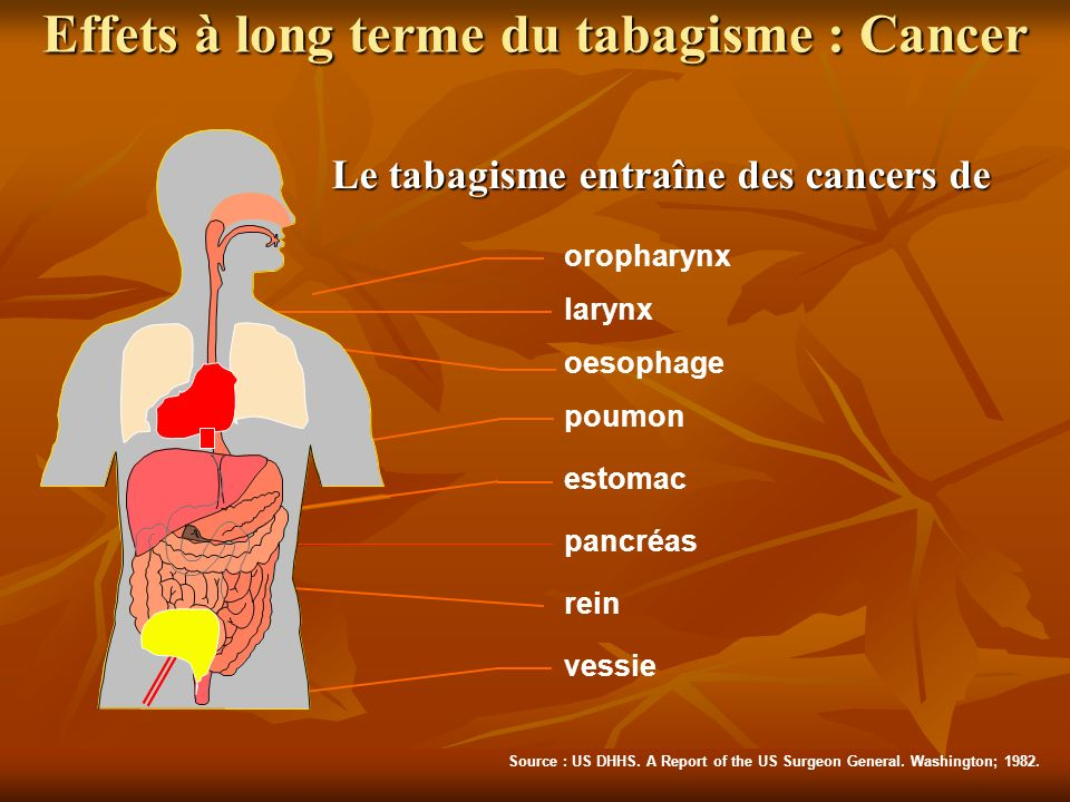 Effets à long terme du tabagisme : Cancer