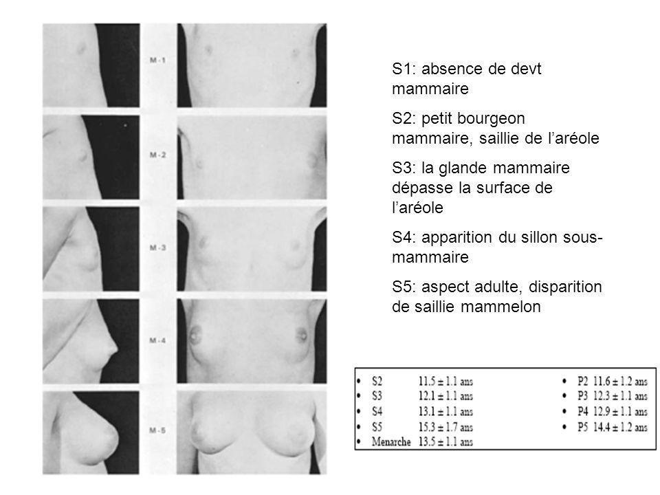 S1: absence de devt mammaire