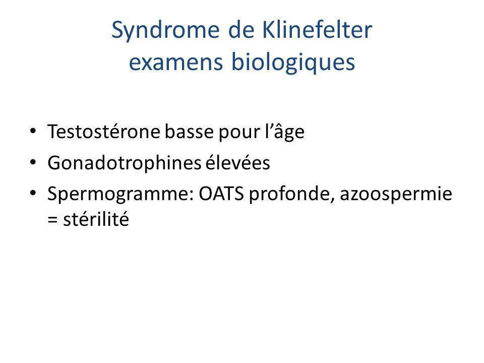 Syndrome de Klinefelter examens biologiques