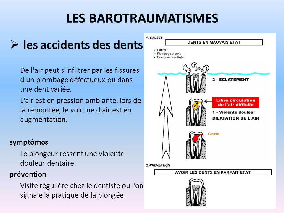 LES BAROTRAUMATISMES les accidents des dents