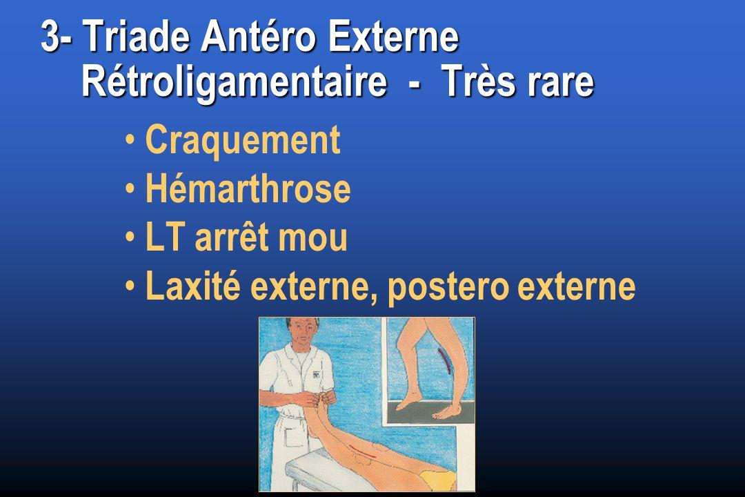 3- Triade Antéro Externe Rétroligamentaire - Très rare