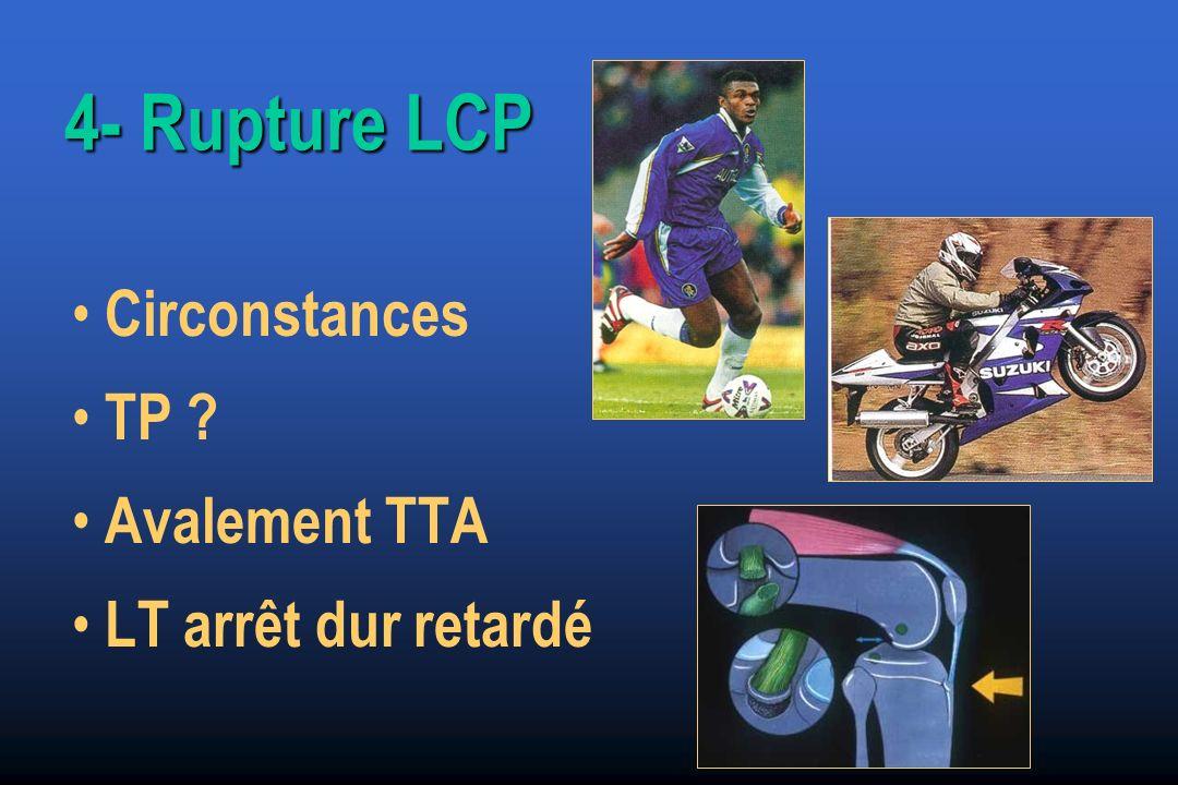 4- Rupture LCP Circonstances TP Avalement TTA LT arrêt dur retardé