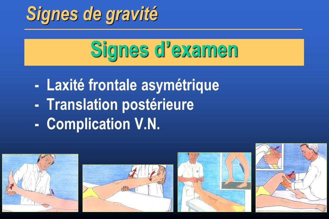 Signes d'examen Signes de gravité - Laxité frontale asymétrique