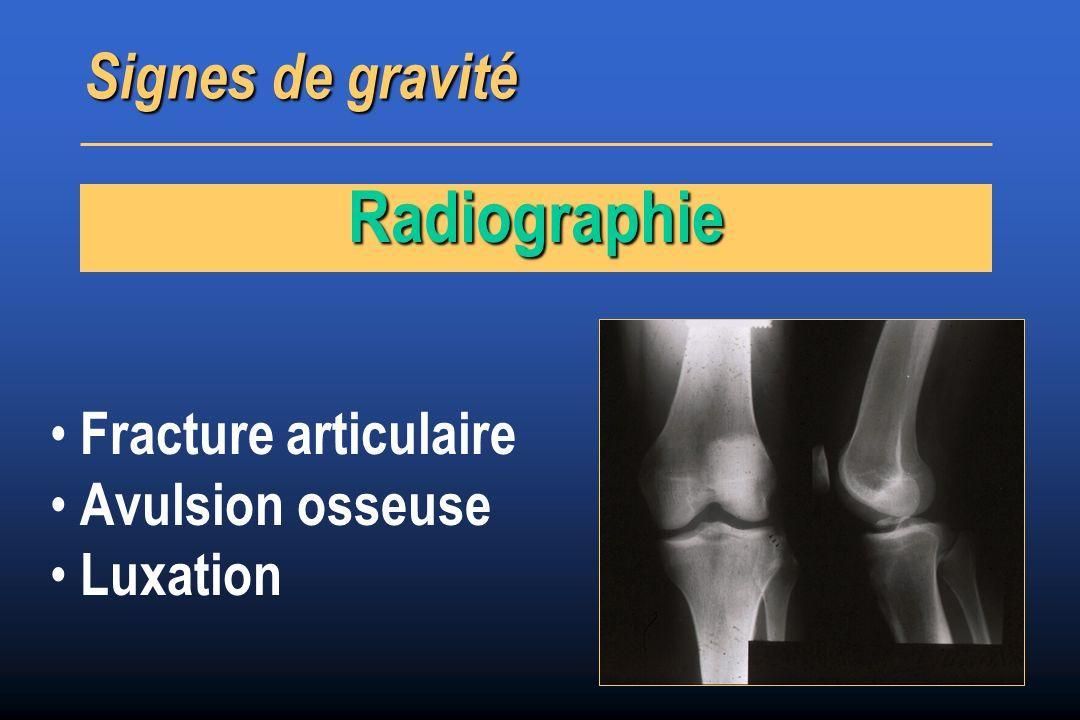 Radiographie Signes de gravité Fracture articulaire Avulsion osseuse