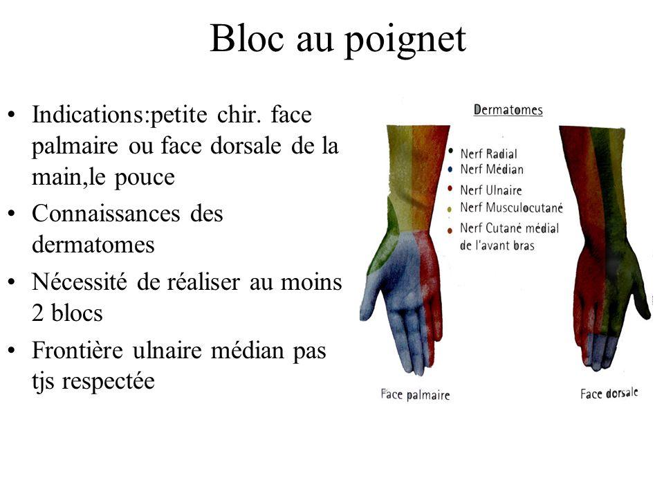Bloc au poignet Indications:petite chir. face palmaire ou face dorsale de la main,le pouce. Connaissances des dermatomes.