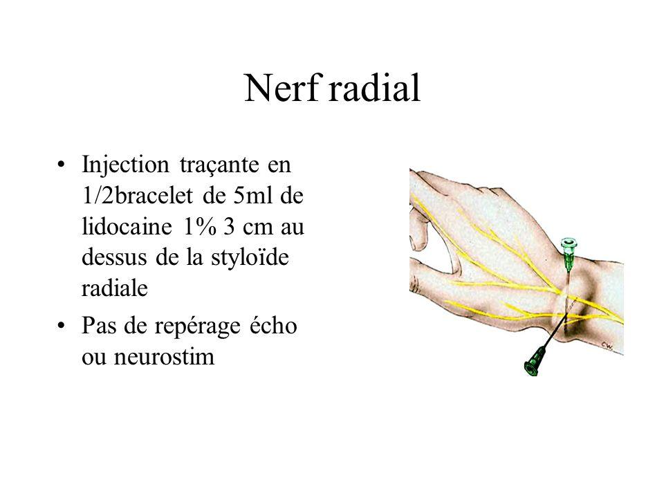 Nerf radial Injection traçante en 1/2bracelet de 5ml de lidocaine 1% 3 cm au dessus de la styloïde radiale.