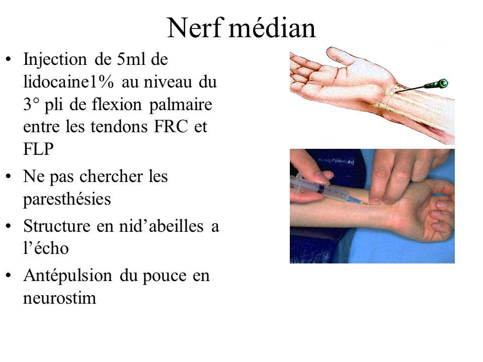 Nerf médian Injection de 5ml de lidocaine1% au niveau du 3° pli de flexion palmaire entre les tendons FRC et FLP.