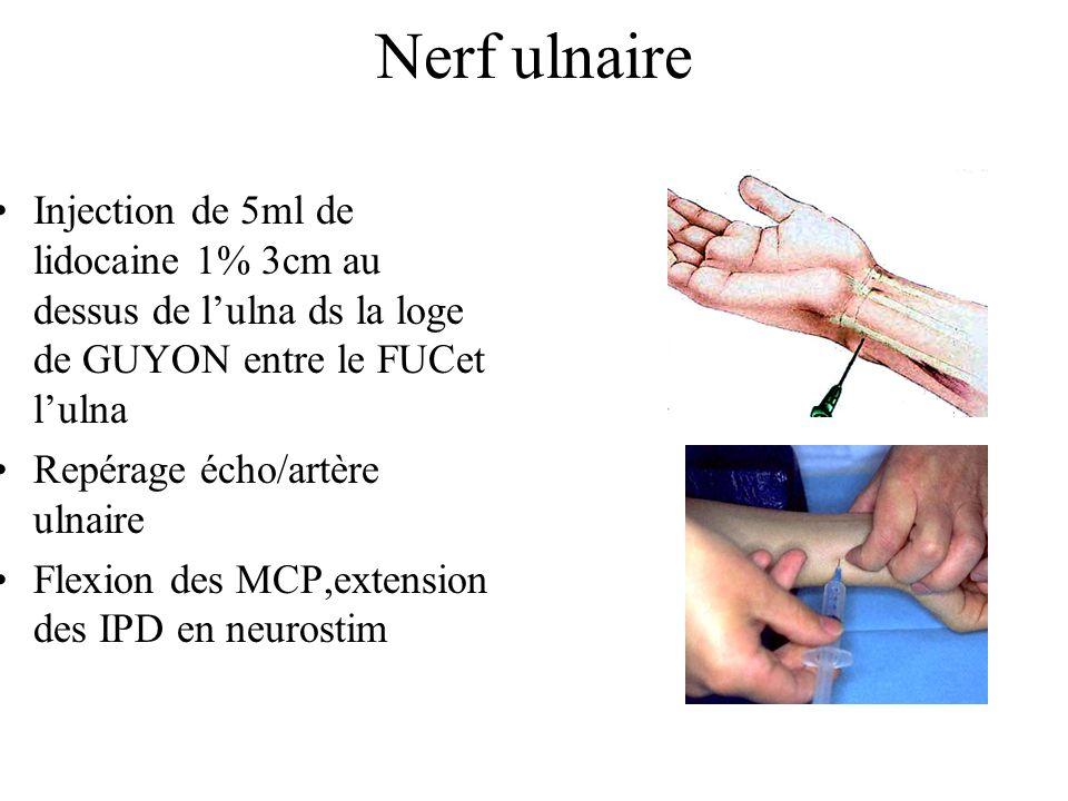 Nerf ulnaire Injection de 5ml de lidocaine 1% 3cm au dessus de l'ulna ds la loge de GUYON entre le FUCet l'ulna.