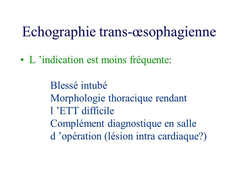 Echographie trans-œsophagienne