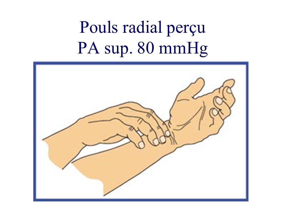 Pouls radial perçu PA sup. 80 mmHg