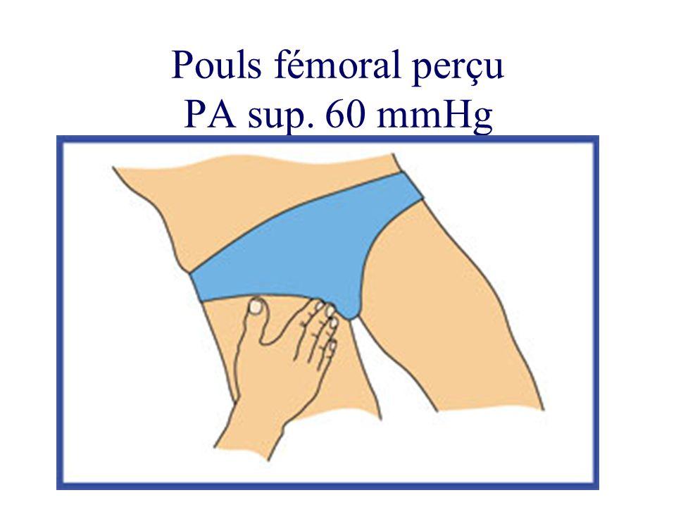 Pouls fémoral perçu PA sup. 60 mmHg