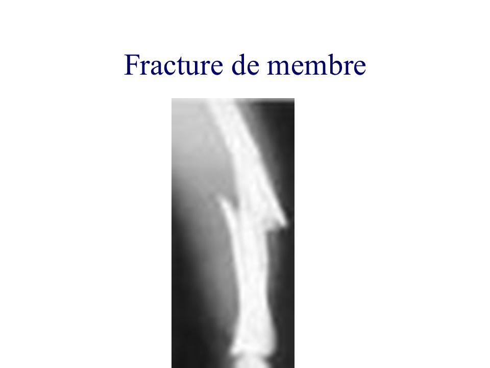 Fracture de membre