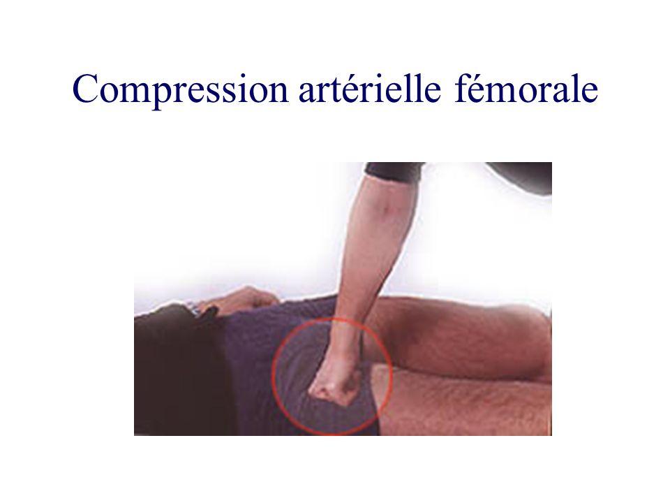 Compression artérielle fémorale