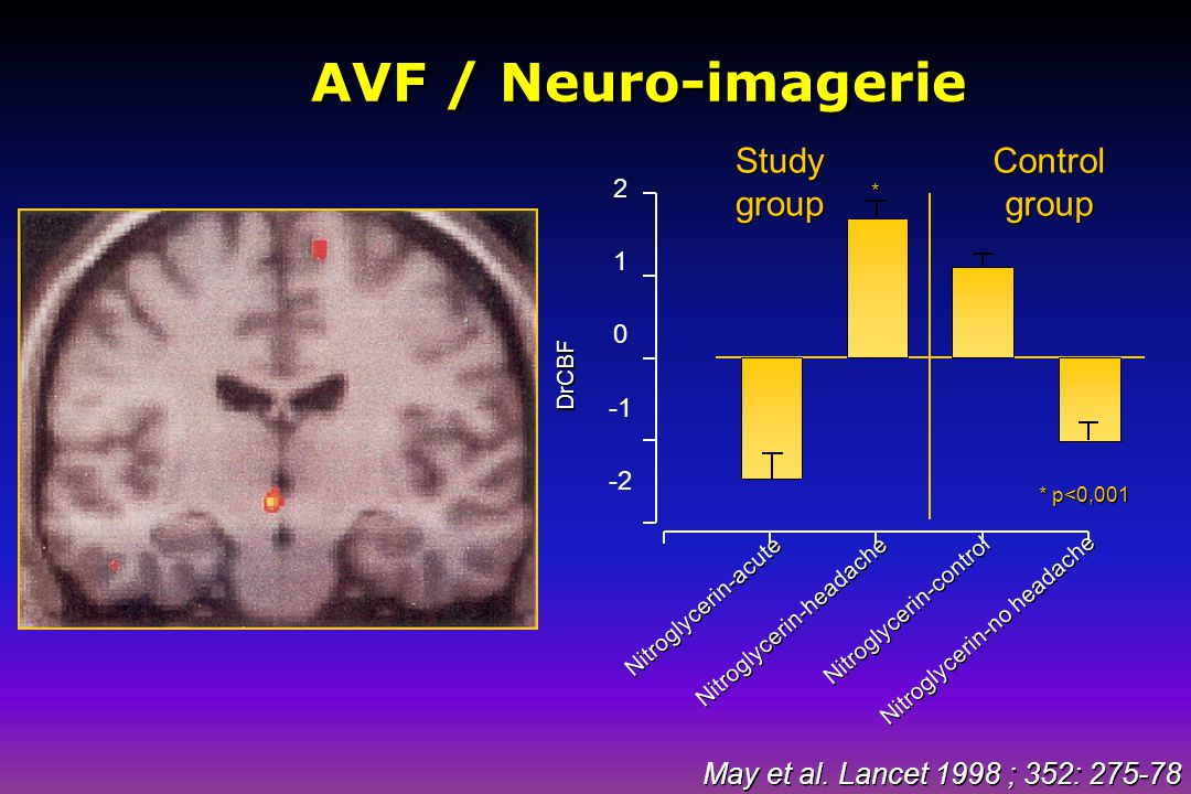AVF / Neuro-imagerie Study group Control group