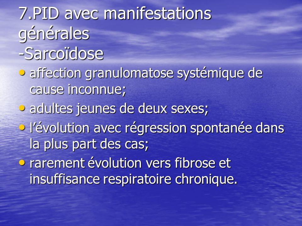 7.PID avec manifestations générales -Sarcoïdose