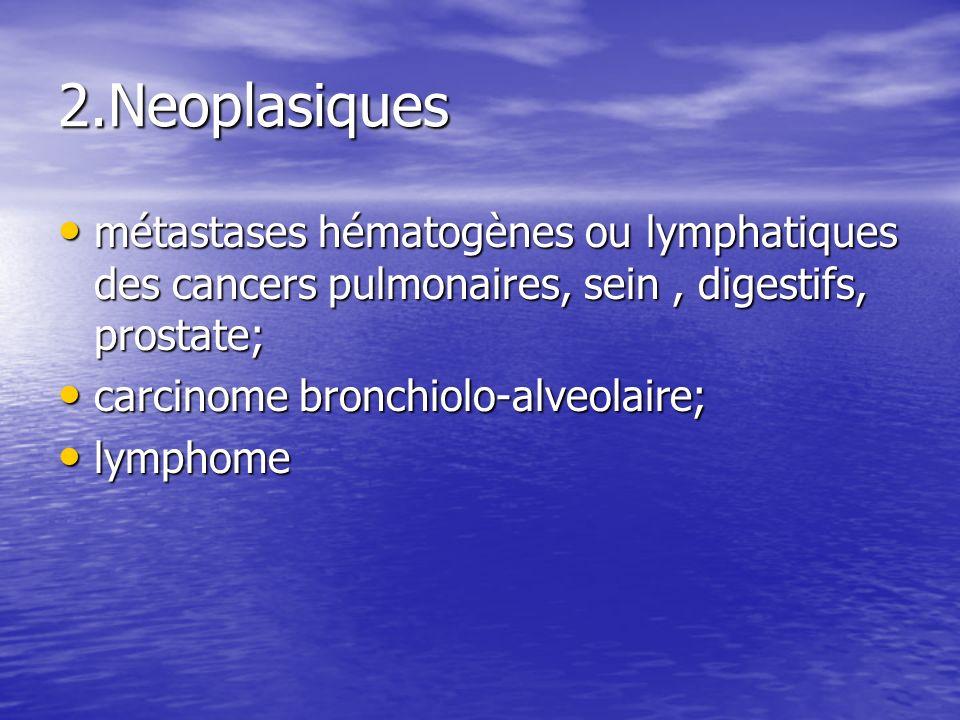 2.Neoplasiques métastases hématogènes ou lymphatiques des cancers pulmonaires, sein , digestifs, prostate;
