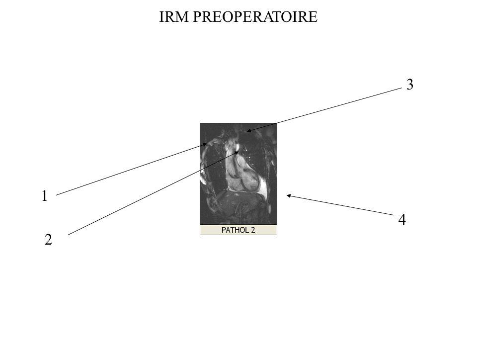 IRM PREOPERATOIRE 3 1 4 2