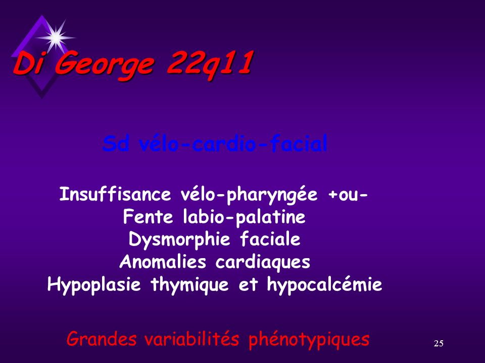 Di George 22q11 Sd vélo-cardio-facial Insuffisance vélo-pharyngée +ou-