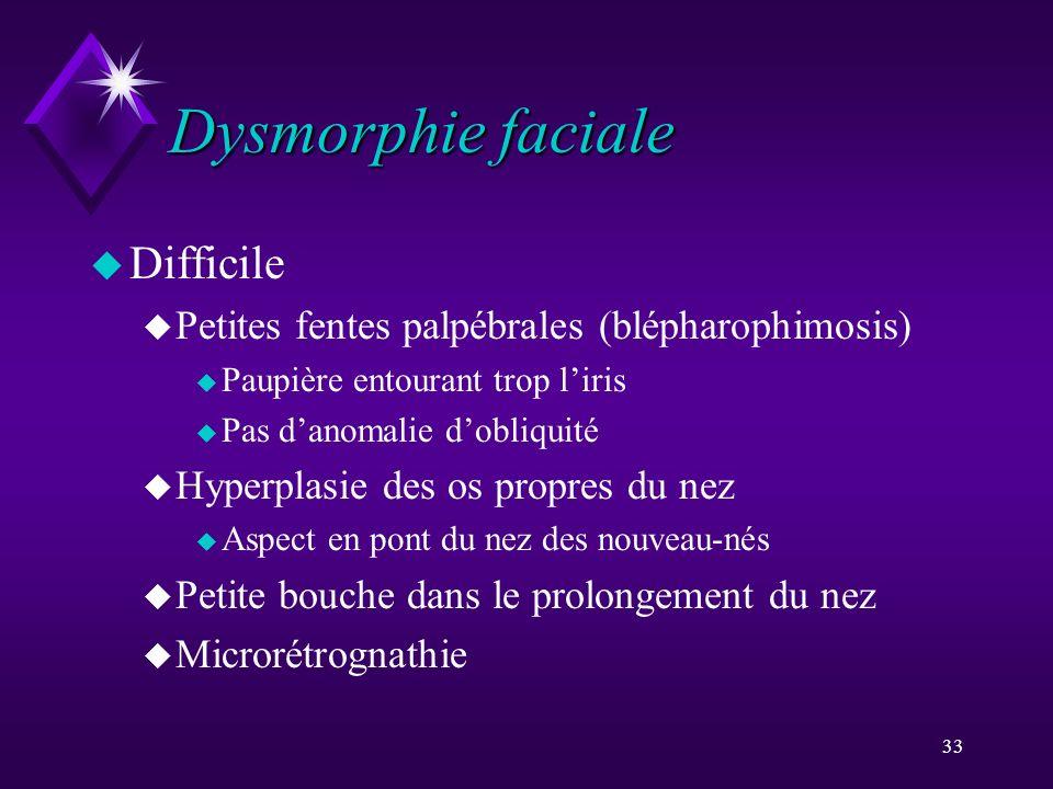 Dysmorphie faciale Difficile