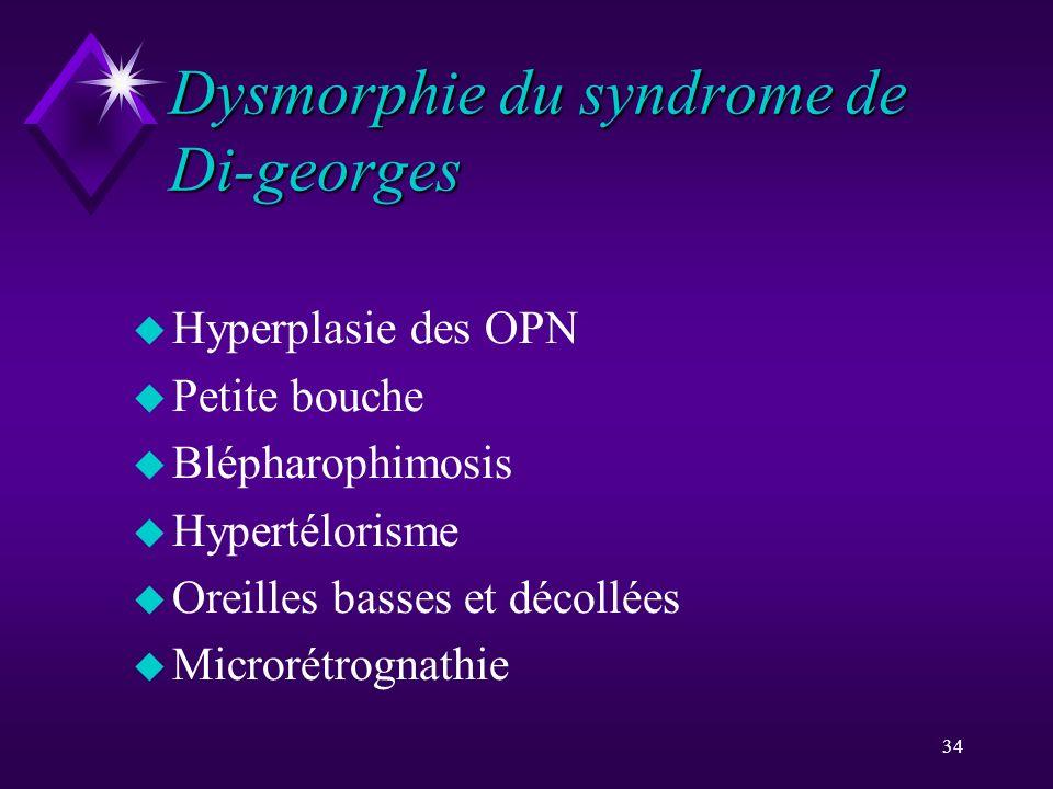 Dysmorphie du syndrome de Di-georges