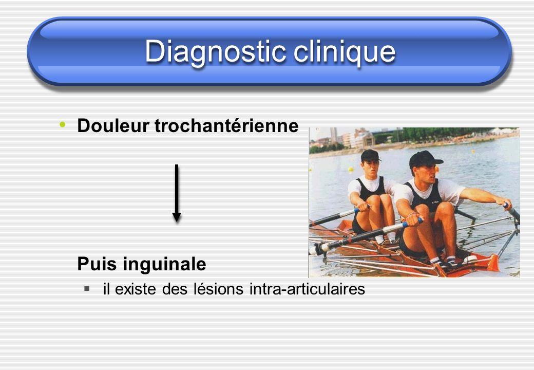 Diagnostic clinique Douleur trochantérienne Puis inguinale