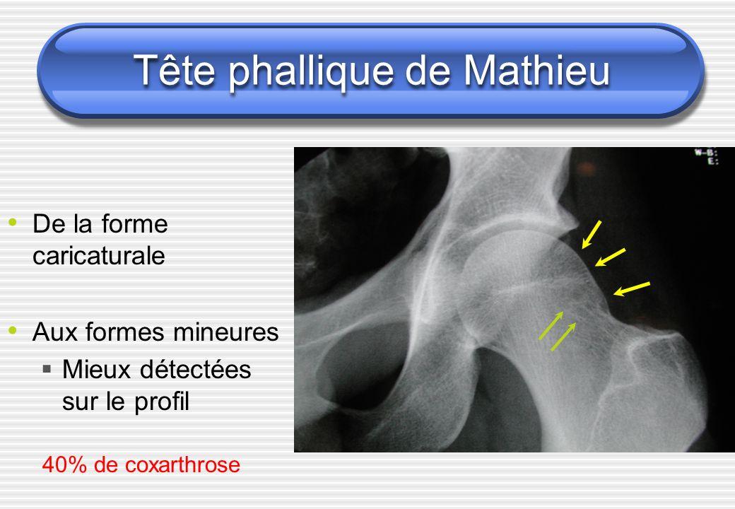 Tête phallique de Mathieu