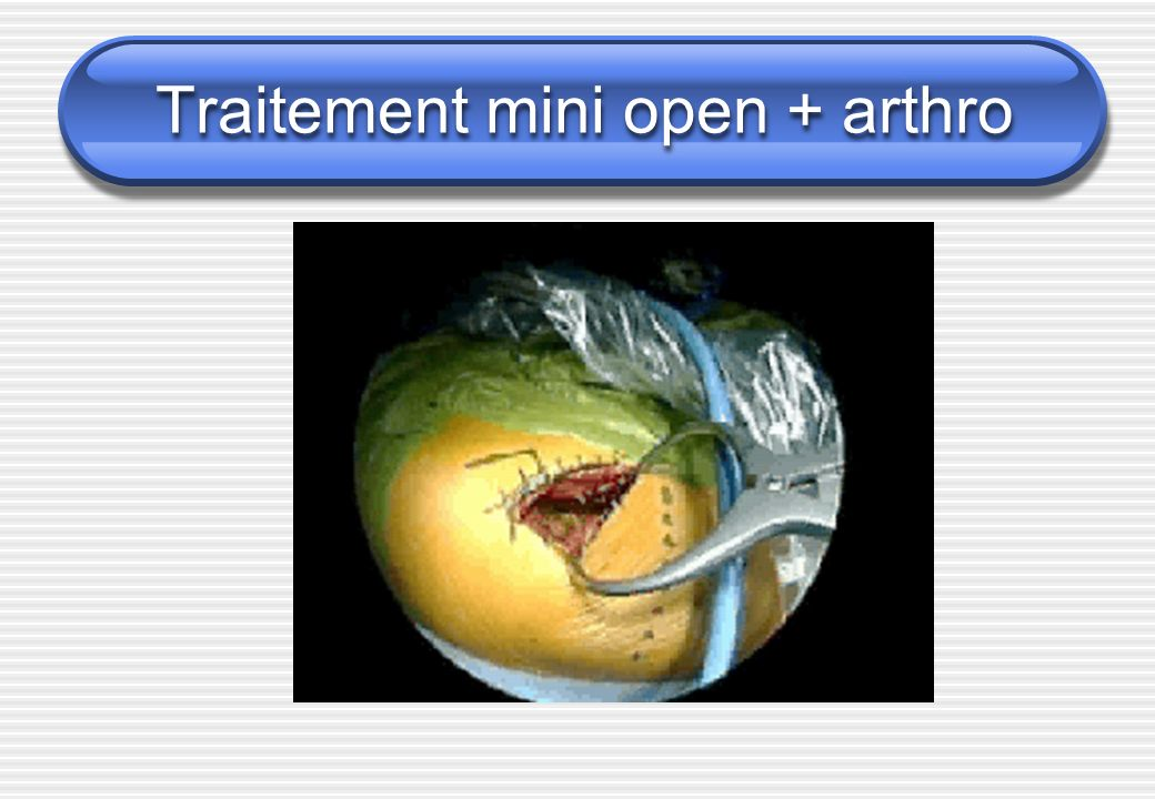 Traitement mini open + arthro