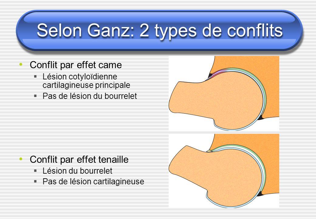Selon Ganz: 2 types de conflits