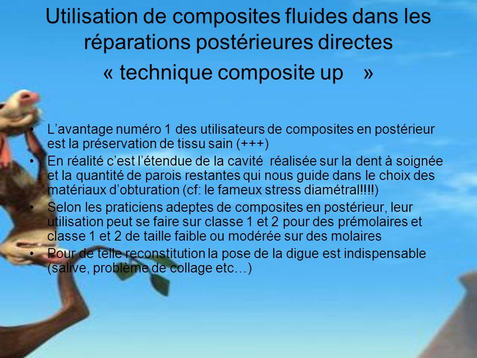 Utilisation de composites fluides dans les réparations postérieures directes « technique composite up »