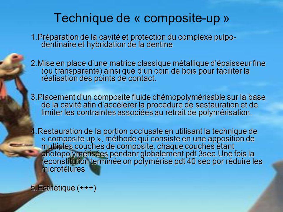 Technique de « composite-up »