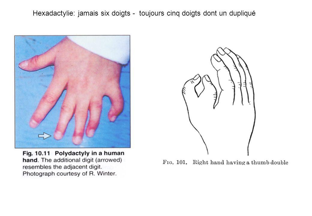 Hexadactylie: jamais six doigts - toujours cinq doigts dont un dupliqué