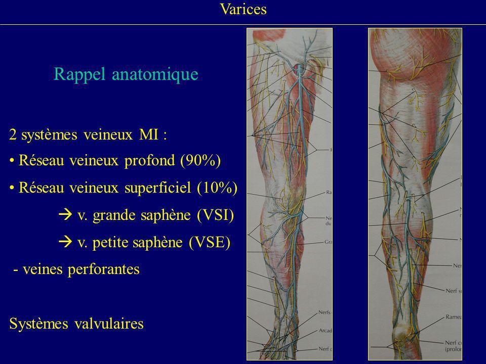 Varices Rappel anatomique. 2 systèmes veineux MI : Réseau veineux profond (90%) Réseau veineux superficiel (10%)