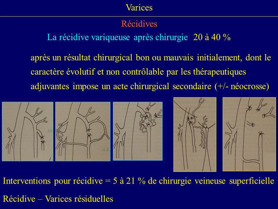 La récidive variqueuse après chirurgie 20 à 40 %