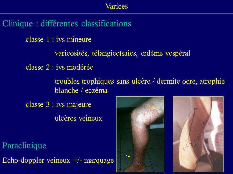 Clinique : différentes classifications