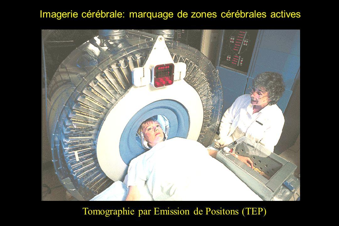 Imagerie cérébrale: marquage de zones cérébrales actives