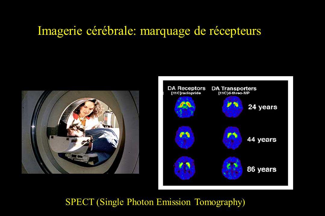 Imagerie cérébrale: marquage de récepteurs