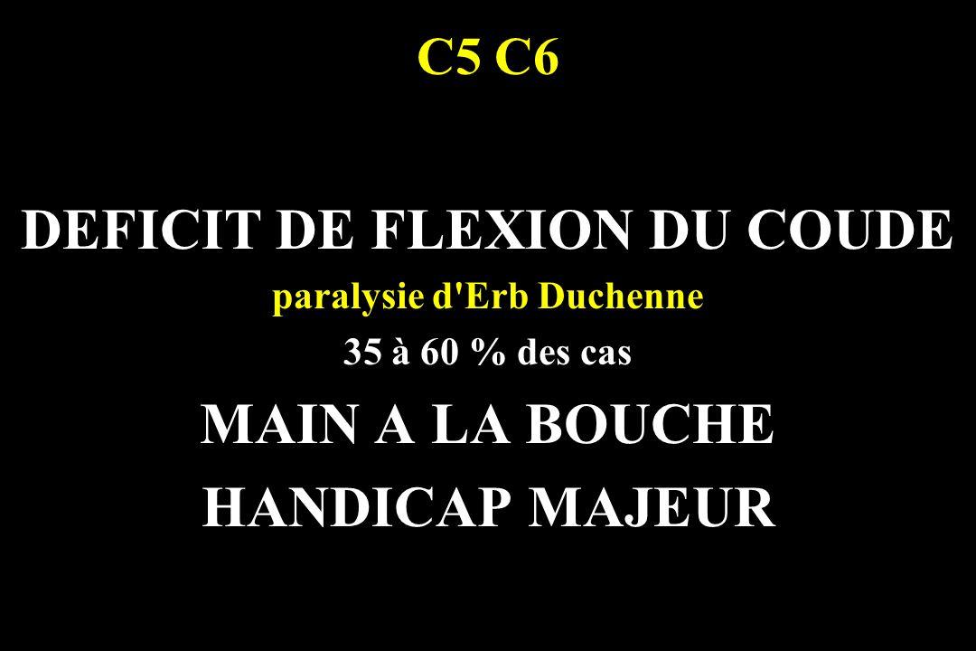 DEFICIT DE FLEXION DU COUDE paralysie d Erb Duchenne