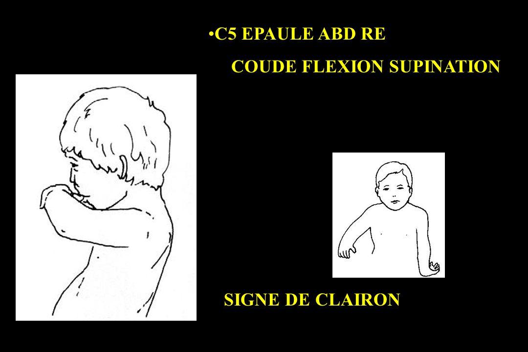 C5 EPAULE ABD RE COUDE FLEXION SUPINATION SIGNE DE CLAIRON
