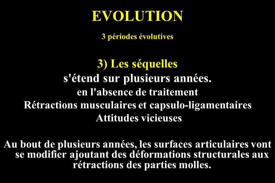 EVOLUTION 3) Les séquelles s étend sur plusieurs années.