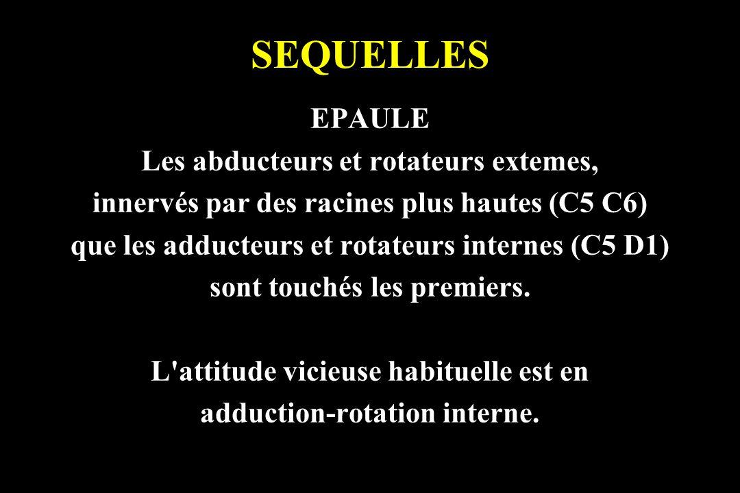 SEQUELLES EPAULE Les abducteurs et rotateurs extemes,