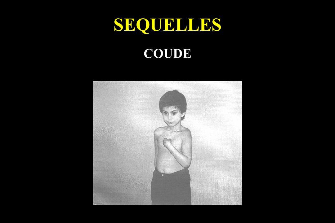 SEQUELLES COUDE