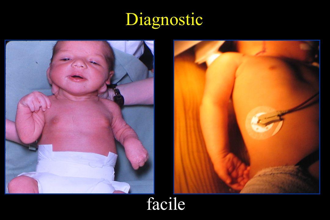 Diagnostic facile Atteinte C5C6C7 Atteinte complète