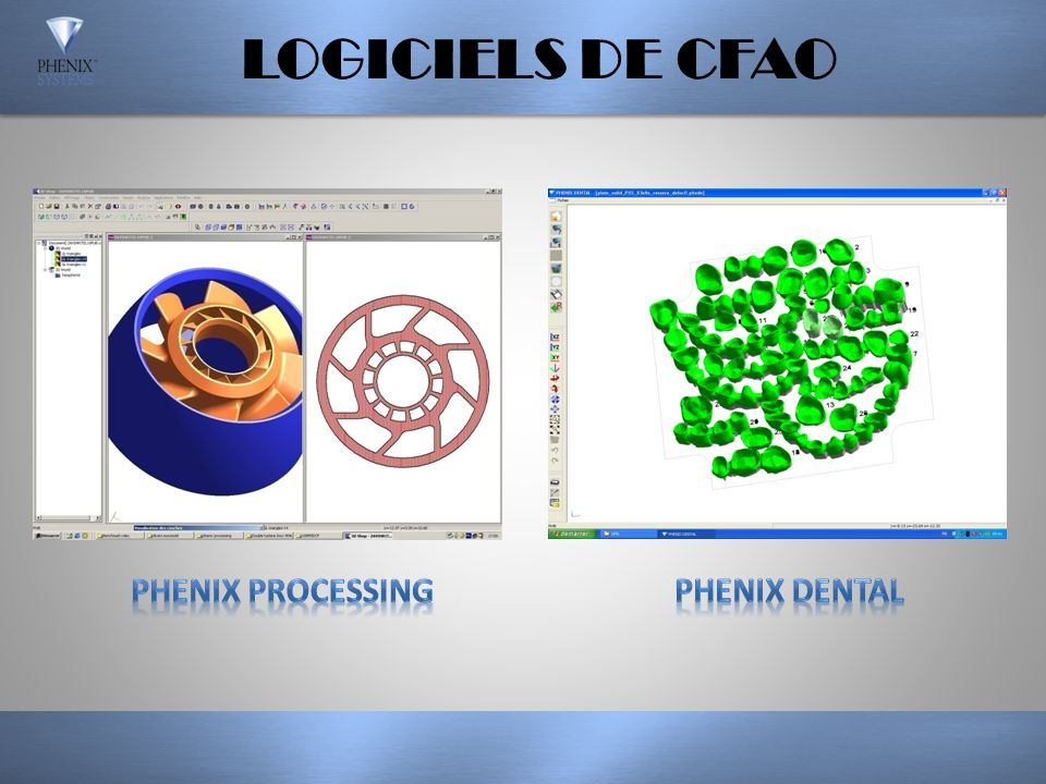 LOGICIELS DE CFAO PHENIX PROCESSING PHENIX DENTAL