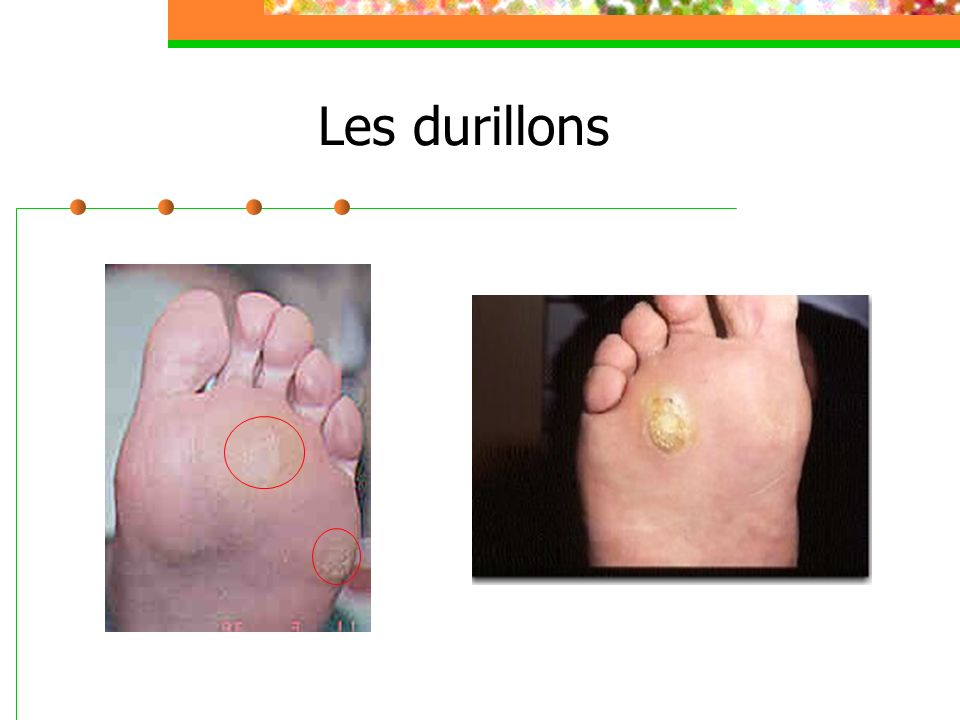 Les durillons