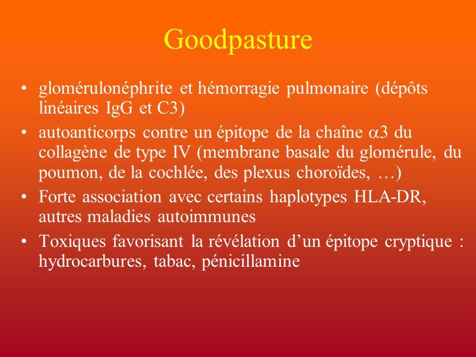 Goodpasture glomérulonéphrite et hémorragie pulmonaire (dépôts linéaires IgG et C3)